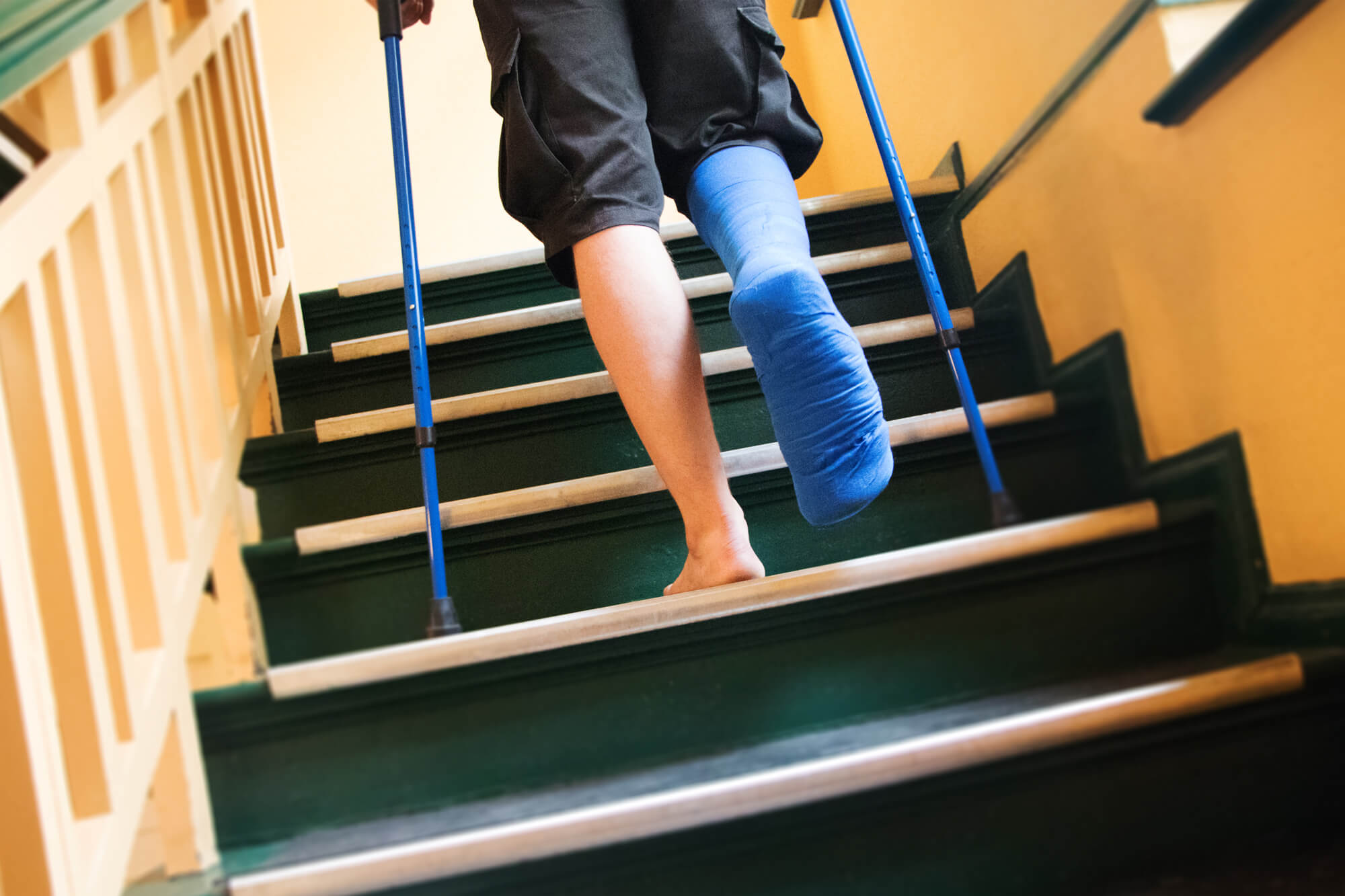 Gehen krücken treppen ohne belastung mit tertmocartu: Treppensteigen